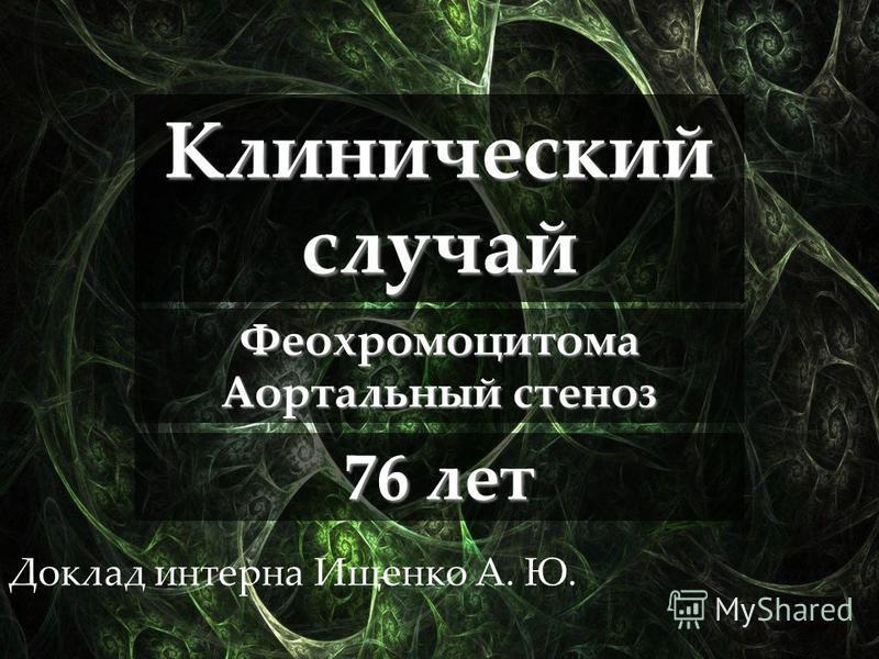 Доклад интерна Ищенко А. Ю. 76 лет Клинический случай Феохромоцитома Аортальный стеноз