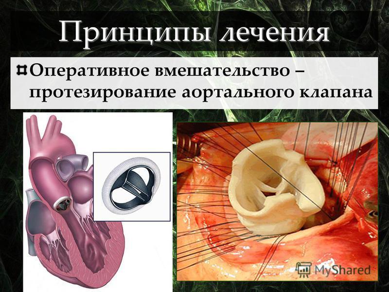 Оперативное вмешательство – протезирование аортального клапана