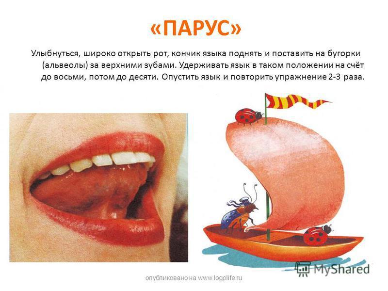 «ПАРУС» Улыбнуться, широко открыть рот, кончик языка поднять и поставить на бугорки (альвеолы) за верхними зубами. Удерживать язык в таком положении на счёт до восьми, потом до десяти. Опустить язык и повторить упражнение 2-3 раза. опубликовано на ww