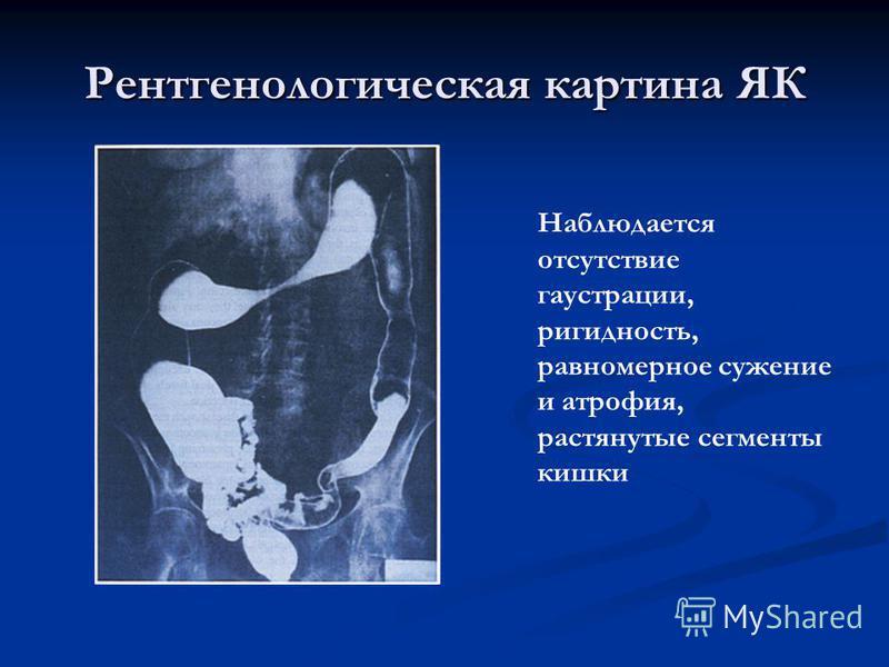 Рентгенологическая картина ЯК Наблюдается отсутствие гаустрации, ригидность, равномерное сужение и атрофия, растянутые сегменты кишки
