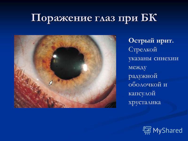 Поражение глаз при БК Острый ирит. Стрелкой указаны синехии между радужной оболочкой и капсулой хрусталика