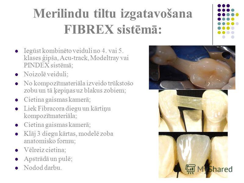 Merilindu tiltu izgatavošana FIBREX sistēmā: Iegūst kombinēto veiduli no 4. vai 5. klases ģipša, Acu-track, Modeltray vai PINDEX sistēmā; Noizolē veiduli; No kompozītmateriāla izveido trūkstošo zobu un tā ķepiņas uz blakus zobiem; Cietina gaismas kam