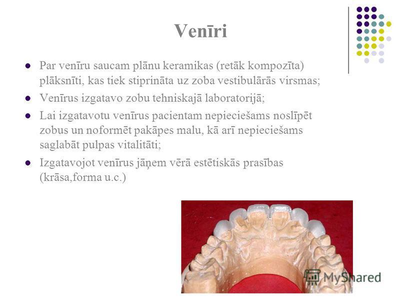 Venīri Par venīru saucam plānu keramikas (retāk kompozīta) plāksnīti, kas tiek stiprināta uz zoba vestibulārās virsmas; Venīrus izgatavo zobu tehniskajā laboratorijā; Lai izgatavotu venīrus pacientam nepieciešams noslīpēt zobus un noformēt pakāpes ma