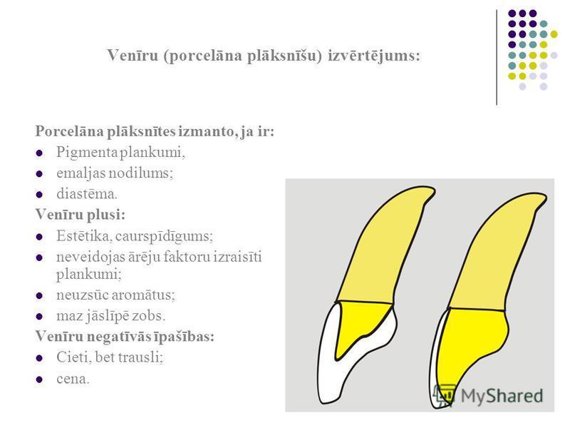 Venīru (porcelāna plāksnīšu) izvērtējums: Porcelāna plāksnītes izmanto, ja ir: Pigmenta plankumi, emaljas nodilums; diastēma. Venīru plusi: Estētika, caurspīdīgums; neveidojas ārēju faktoru izraisīti plankumi; neuzsūc aromātus; maz jāslīpē zobs. Venī