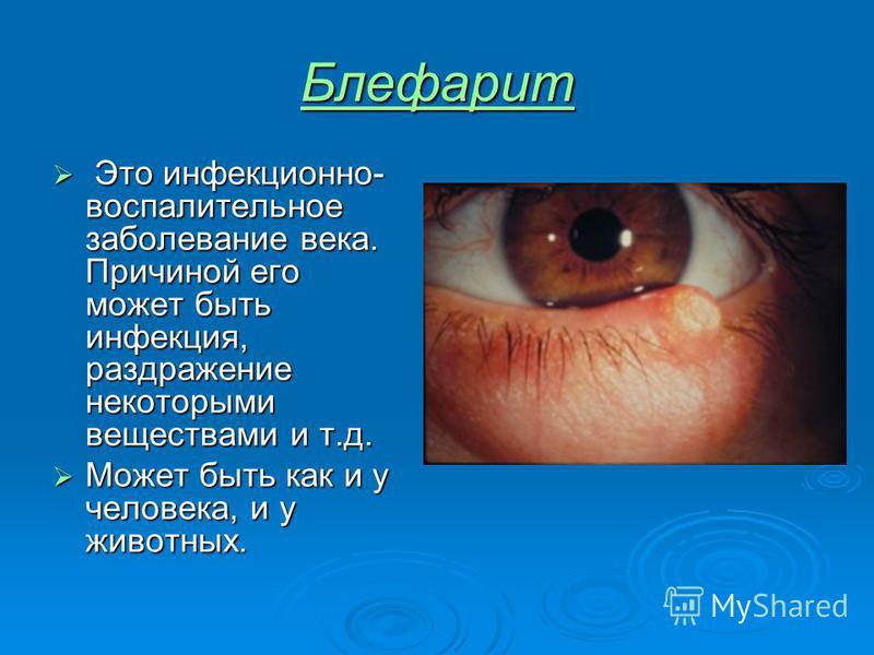 Блефарит Это инфекционно- воспалительное заболевание века. Причиной его может быть инфекция, раздражение некоторыми веществами и т.д. Это инфекционно- воспалительное заболевание века. Причиной его может быть инфекция, раздражение некоторыми веществам