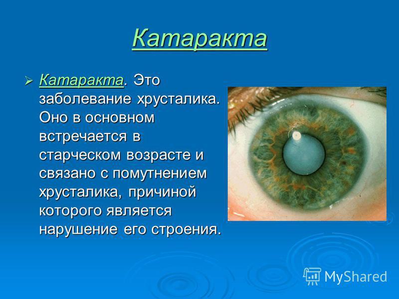 Катаракта Катаракта. Это заболевание хрусталика. Оно в основном встречается в старческом возрасте и связано с помутнением хрусталика, причиной которого является нарушение его строения. Катаракта. Это заболевание хрусталика. Оно в основном встречается
