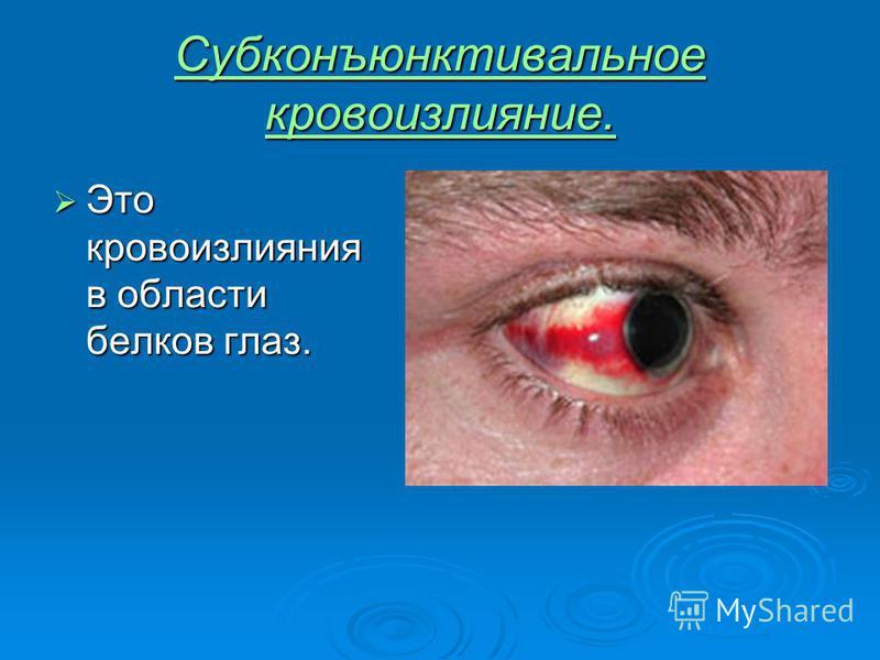 Субконъюнктивальное кровоизлияние. Это кровоизлияния в области белков глаз. Это кровоизлияния в области белков глаз.