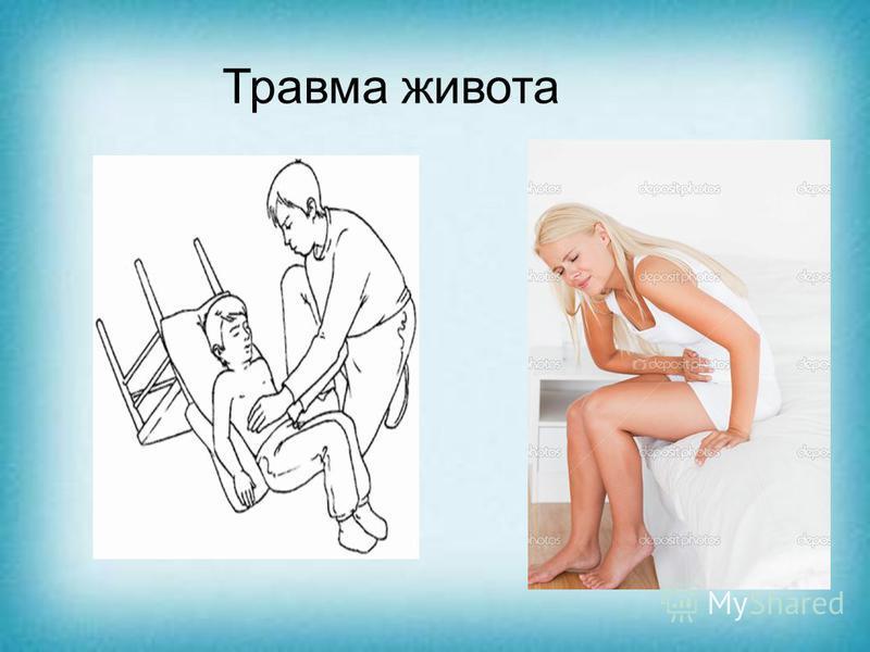 Травма живота