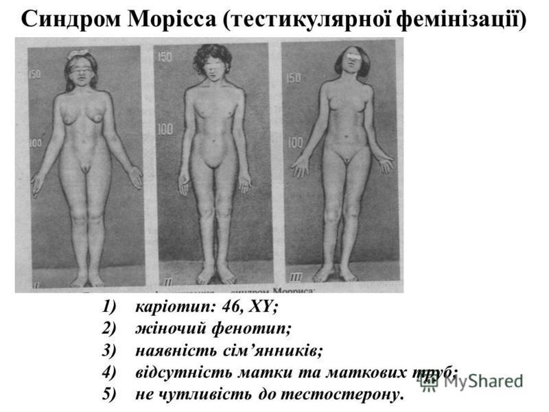 1) каріотип: 46, XY; 2) жіночий фенотип; 3) наявність сімянників; 4) відсутність матки та маткових труб; 5) не чутливість до тестостерону. Синдром Морісса (тестикулярної фемінізації)