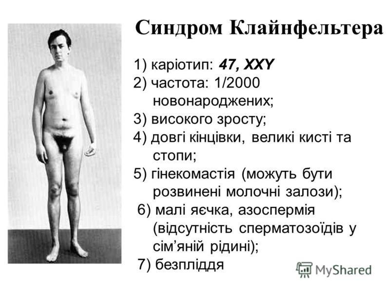 Синдром Клайнфельтера 1) каріотип: 47, XXY 2) частота: 1/2000 новонароджених; 3) високого зросту; 4) довгі кінцівки, великі кисті та стопи; 5) гінекомастія (можуть бути розвинені молочні залози); 6) малі яєчка, азоспермія (відсутність сперматозоїдів
