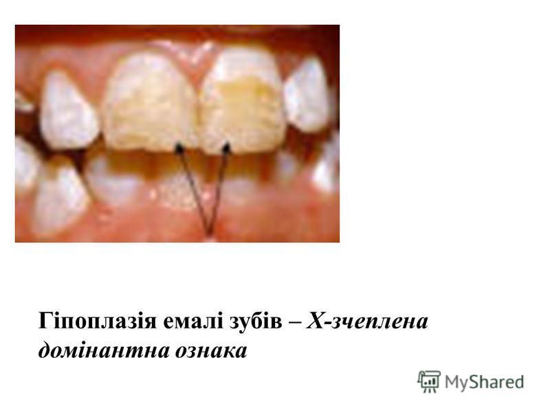 Гіпоплазія емалі зубів – Х-зчеплена домінантна ознака
