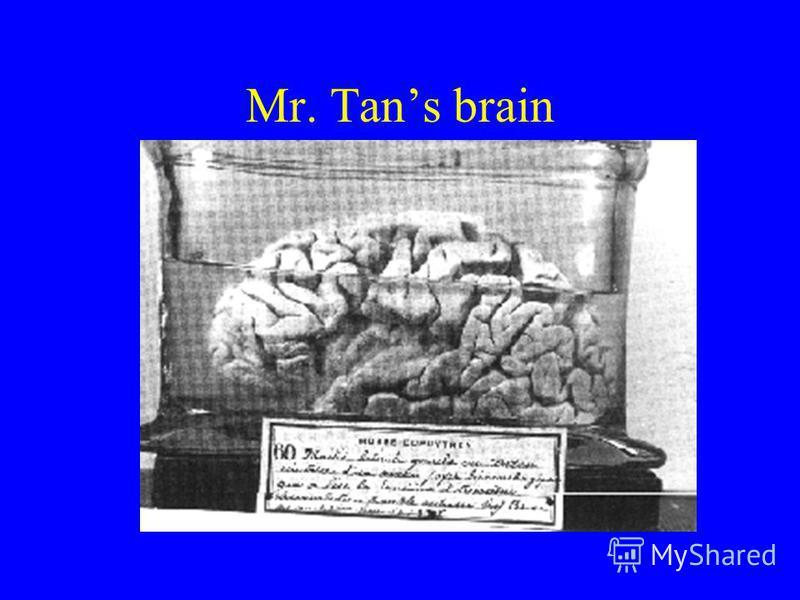 Mr. Tans brain