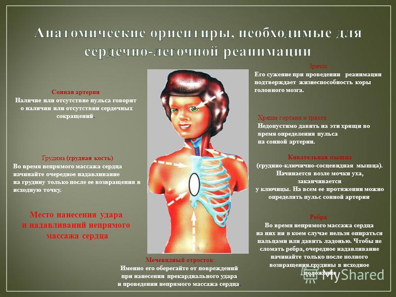 Хрящи гортани и трахея Недопустимо давить на эти хрящи во время определения пульса на сонной артерии. Зрачок Его сужение при проведении реанимации подтверждает жизнеспособность коры головного мозга. Грудина (грудная кость) Во время непрямого массажа