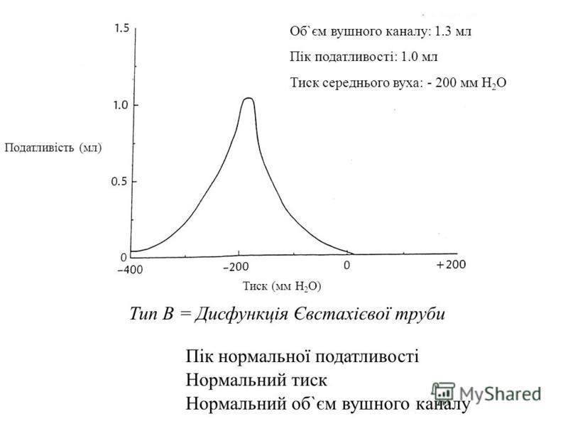 Type C = Eustachian Tube Dysfunction Normal Compliance Peak Normal Pressure Normal Ear Canal Volume Тип В = Дисфункція Євстахієвої труби Нормальний об`єм вушного каналу Нормальний тиск Пік нормальної податливості Об`єм вушного каналу: 1.3 мл Пік пода