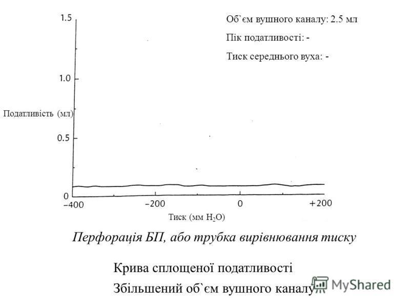 Tympanic Membrane Perforation or PE Tubes Flat Compliance Curve Increased Ear Canal Volume Збільшений об`єм вушного каналу Об`єм вушного каналу: 2.5 мл Пік податливості: - Тиск середнього вуха: - Крива сплощеної податливості Тиск (мм H 2 O) Перфорацi