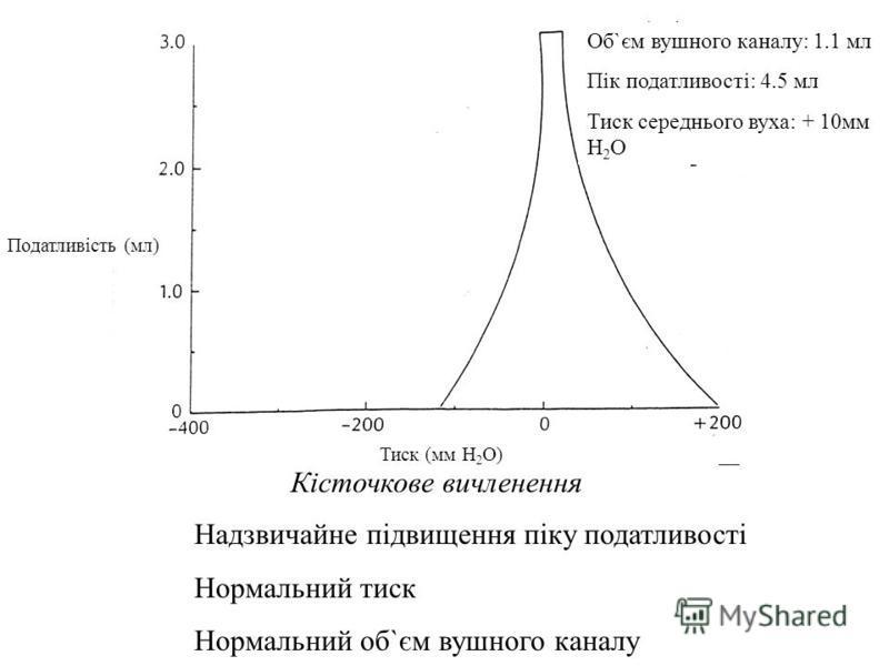Кісточкове вичленення Extreme Increase in Compliance Peak Normal Pressure Normal Ear Canal Volume Об`єм вушного каналу: 1.1 мл Пік податливості: 4.5 мл Тиск середнього вуха: + 10мм H 2 O Тиск (мм H 2 O) Надзвичайне підвищення піку податливості Нормал