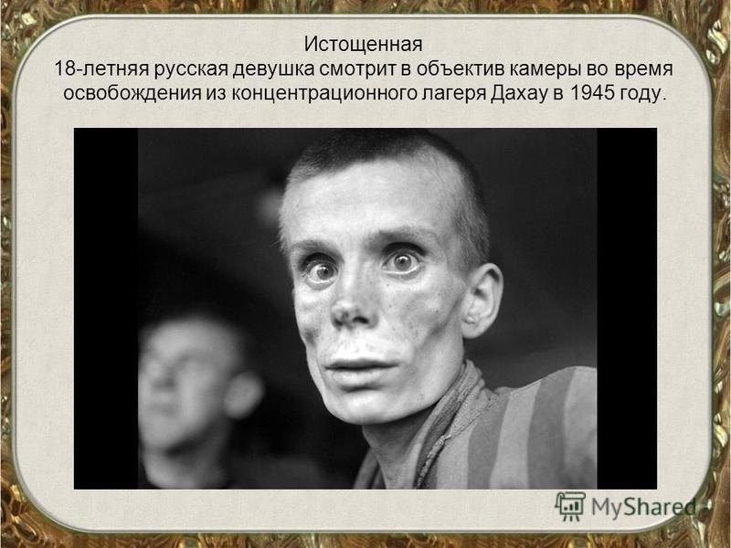 Истощенная 18-летняя русская девушка смотрит в объектив камеры во время освобождения из концентрационного лагеря Дахау в 1945 году.