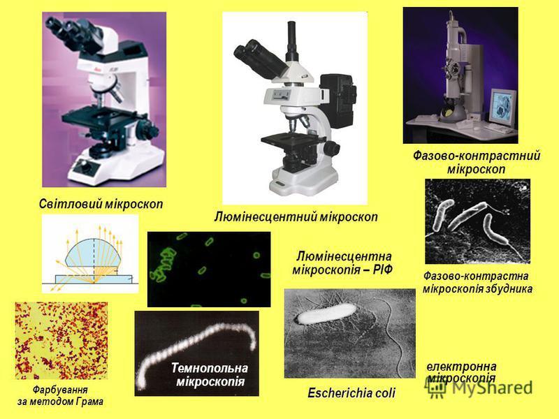Люмінесцентний мікроскоп Фазово-контрастний мікроскоп Світловий мікроскоп Фазово-контрастна мікроскопія збудника Фарбування за методом Грама Люмінесцентна мікроскопія – РІФ Темнопольна мікроскопія електронна мікроскопія Escherichia coli