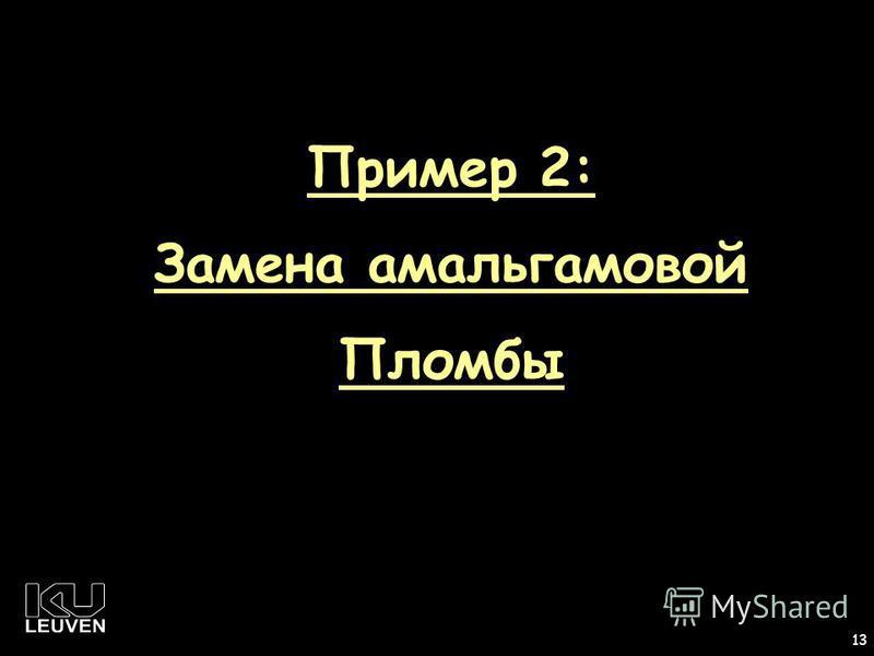 1 13 Пример 2: Замена амальгамовой Пломбы