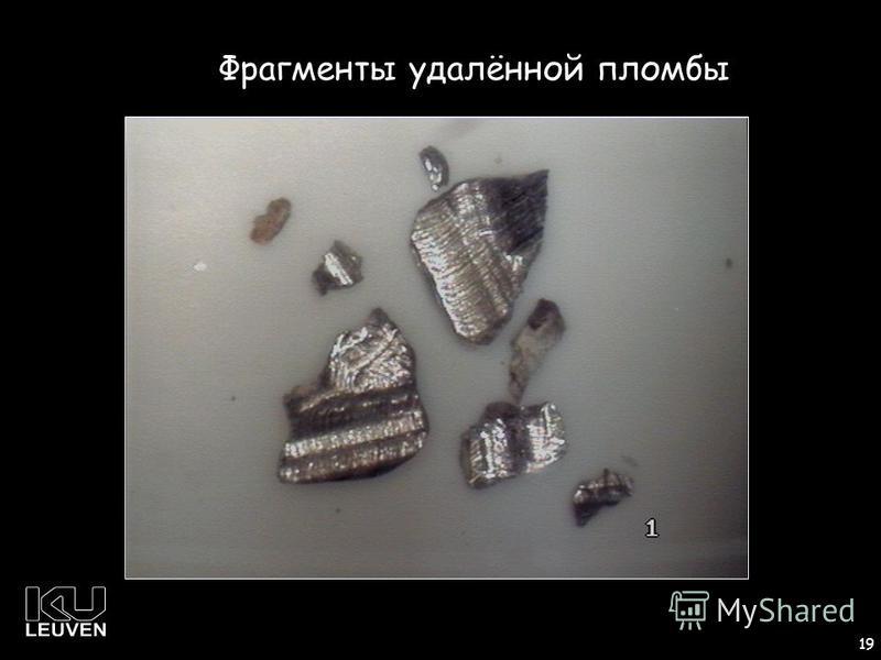 1 19 Фрагменты удалённой пломбы