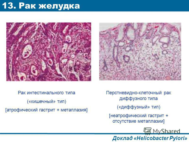 Реферат на тему Рак желудка Рак желудка лечение реферат