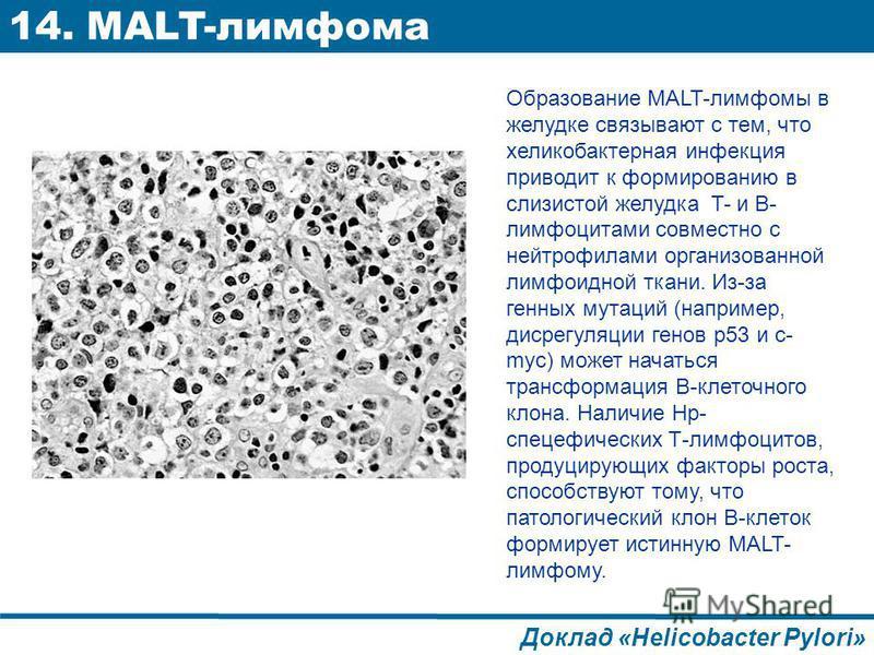 Образование MALT-лимфомы в желудке связывают с тем, что хеликобактерная инфекция приводит к формированию в слизистой желудка T- и B- лимфоцитами совместно с нейтрофилами организованной лимфоидной ткани. Из-за генных мутаций (например, диск регуляции