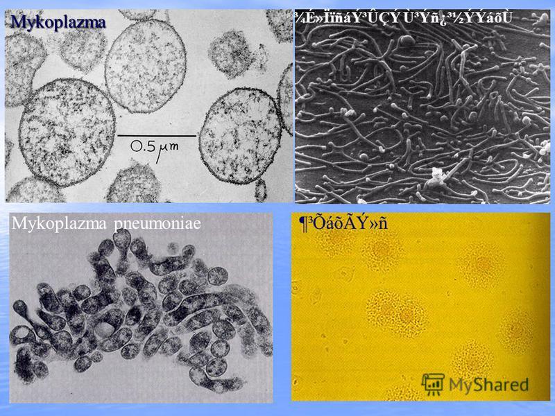 Mykoplazma Mykoplazma pneumoniae ¾É»ÏïñáݳÛÇÝ Ù³Ýñ¿³½ÝÝáõÙ ¶³ÕáõÃÝ»ñ