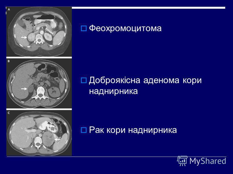 Феохромоцитома Доброякісна аденома кори наднирника Рак кори наднирника