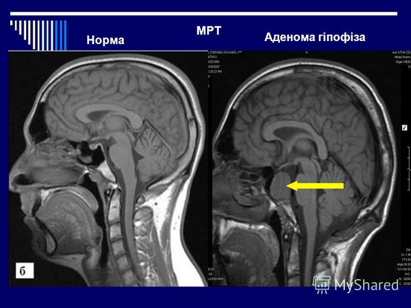 Норма Аденома гіпофіза МРТ