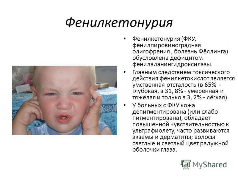Фенилкетонурия Фенилкетонурия (ФКУ, фенилпировиноградная олигофрения, болезнь Фёллинга) обусловлена дефицитом фенилаланингидроксилазы. Главным следствием токсического действия фенилкетокислот является умственная отсталость (в 65% - глубокая, в 31, 8%