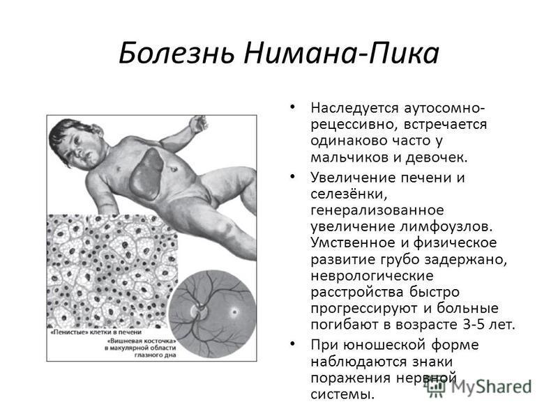 Болезнь Нимана-Пика Наследуется аутосомно- рецессивно, встречается одинаково часто у мальчиков и девочек. Увеличение печени и селезёнки, генерализованное увеличение лимфоузлов. Умственное и физическое развитие грубо задержано, неврологические расстро