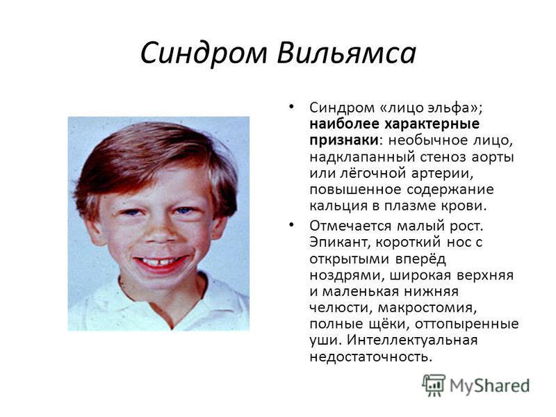 Синдром Вильямса Синдром «лицо эльфа»; наиболее характерные признаки: необычное лицо, надклапанный стеноз аорты или лёгочной артерии, повышенное содержание кальция в плазме крови. Отмечается малый рост. Эпикант, короткий нос с открытыми вперёд ноздря