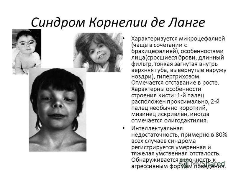 Синдром Корнелии де Ланге Характеризуется микроцефалией (чаще в сочетании с брахицефалией), особенностями лица(сросшиеся брови, длинный фильтр, тонкая загнутая внутрь верхняя губа, вывернутые наружу ноздри), гипертрихозом. Отмечается отставание в рос