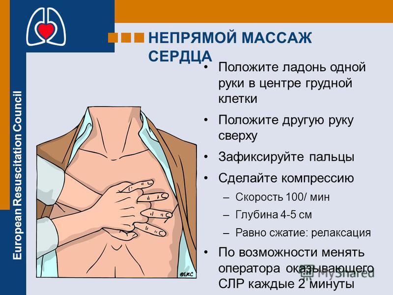 European Resuscitation Council Положите ладонь одной руки в центре грудной клетки Положите другую руку сверху Зафиксируйте пальцы Сделайте компрессию –Скорость 100/ мин –Глубина 4-5 см –Равно сжатие: релаксация По возможности менять оператора оказыва