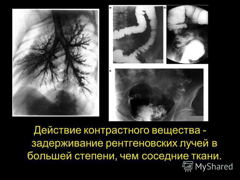 Действие контрастного вещества - задерживание рентгеновских лучей в большей степени, чем соседние ткани.