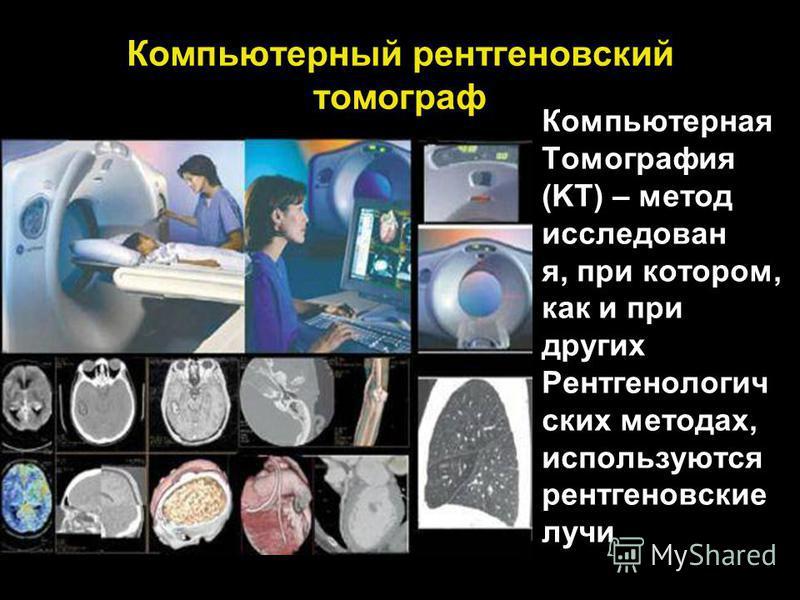 Компьютерный рентгеновский томограф Компьютерная Томография (KT) – метод исследован я, при котором, как и при других Рентгенологич ских методах, используются рентгеновские лучи