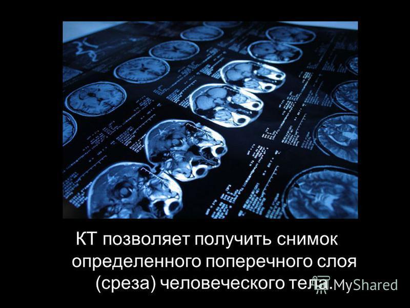 КТ позволяет получить снимок определенного поперечного слоя (среза) человеческого тела.