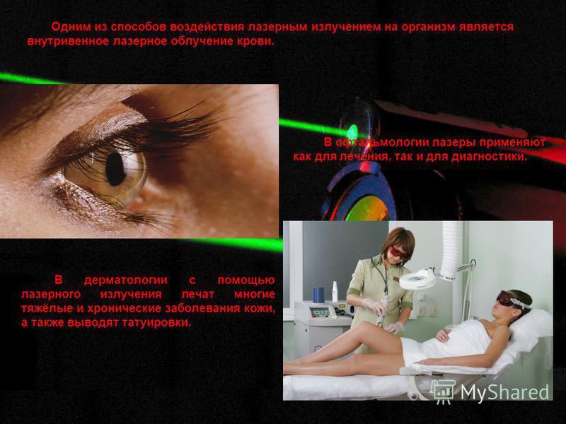Одним из способов воздействия ламерным излучением на организм является внутривенное ламерное облучение крови. В офтальмологии ламеры применяют как для лечения, так и для диагностики. В дерматологии с помощью ламерного излучения лечат многие тяжёлые и