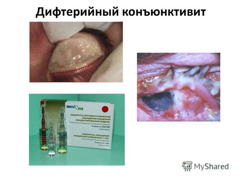 Дифтерийный конъюнктивит