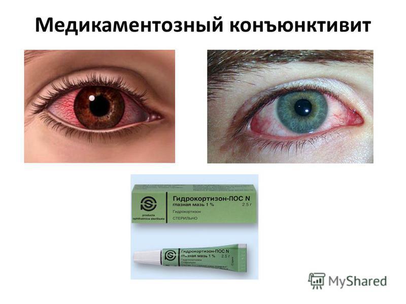 Медикаментозный конъюнктивит