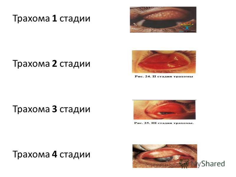 Трахома 1 стадии Трахома 2 стадии Трахома 3 стадии Трахома 4 стадии