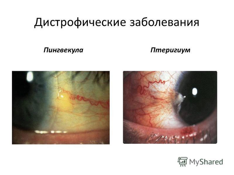Дистрофические заболевания Пингвекула Птеригиум