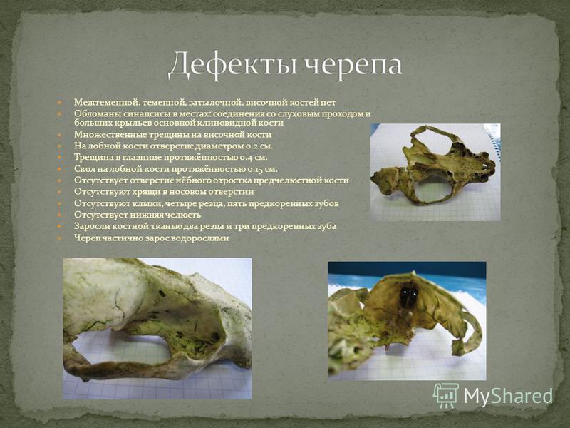 Межтеменной, теменной, затылочной, височной костей нет Обломаны синапсисы в местах: соединения со слуховым проходом и больших крыльев основной клиновидной кости Множественные трещины на височной кости На лобной кости отверстие диаметром 0.2 см. Трещи