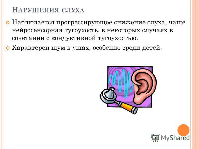 Н АРУШЕНИЯ СЛУХА Наблюдается прогрессирующее снижение слуха, чаще нейросенсорная тугоухость, в некоторых случаях в сочетании с кондуктивной тугоухостью. Характерен шум в ушах, особенно среди детей.