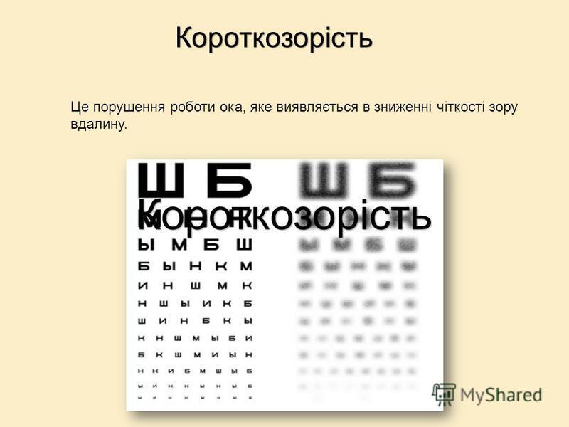 Це порушення роботи ока, яке виявляється в зниженні чіткості зору вдалину. Короткозорість Короткозорість