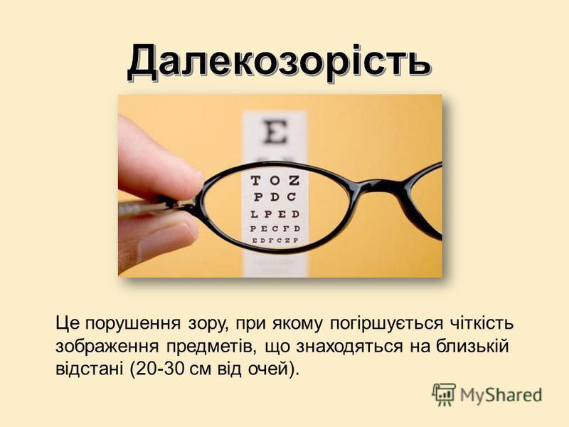 Це порушення зору, при якому погіршується чіткість зображення предметів, що знаходяться на близькій відстані (20-30 см від очей).