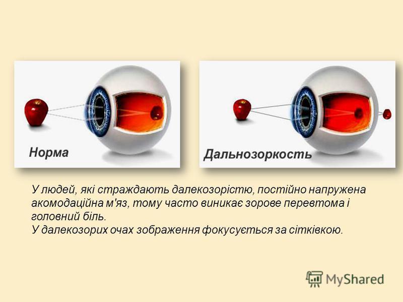 У людей, які страждають далекозорістю, постійно напружена акомодаційна м'яз, тому часто виникає зорове перевтома і головний біль. У далекозорих очах зображення фокусується за сітківкою.