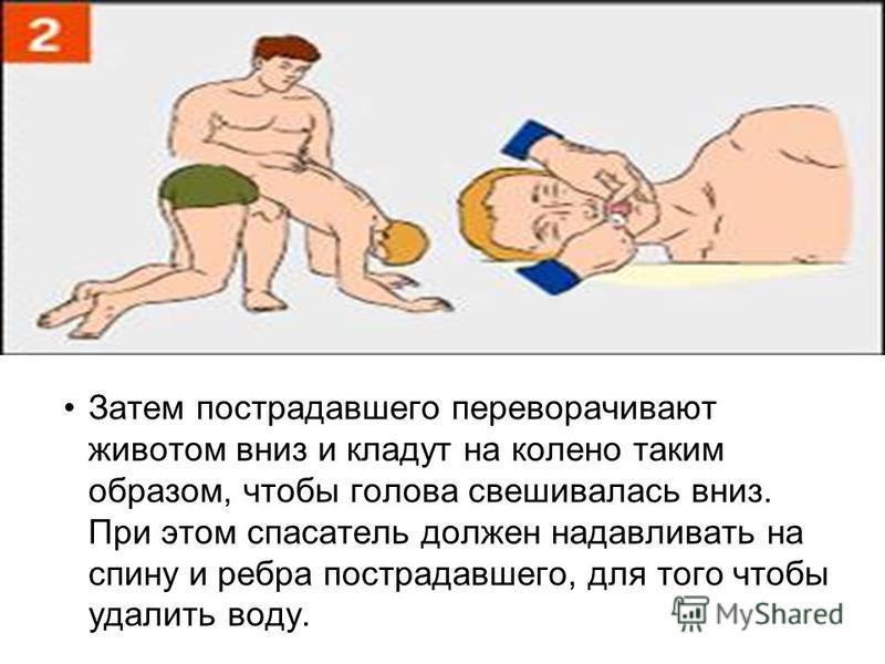 Затем пострадавшего переворачивают животом вниз и кладут на колено таким образом, чтобы голова свешивалась вниз. При этом спасатель должен надавливать на спину и ребра пострадавшего, для того чтобы удалить воду.