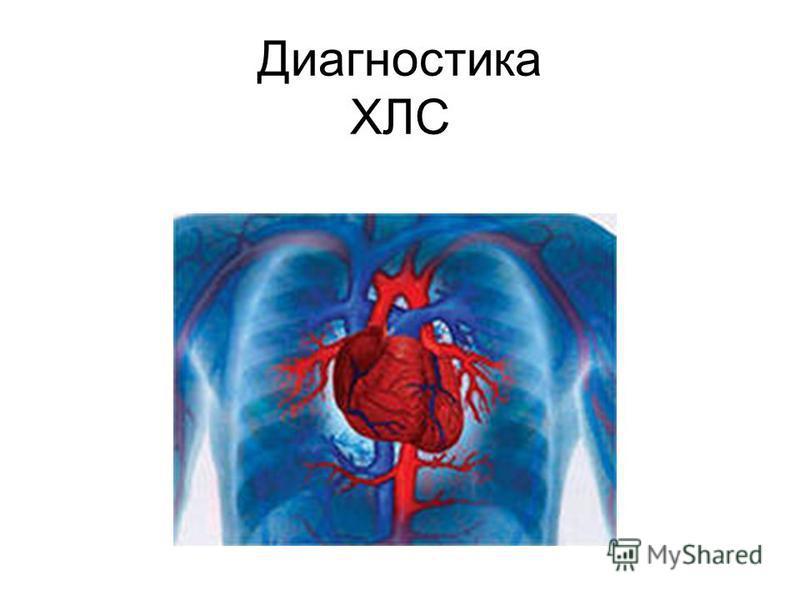 Диагностика ХЛС