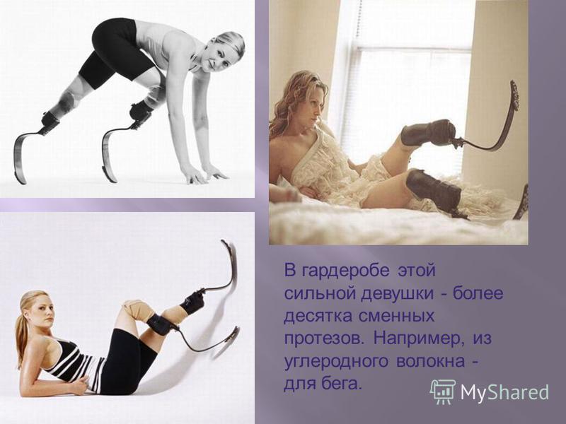 В гардеробе этой сильной девушки - более десятка сменных протезов. Например, из углеродного волокна - для бега.